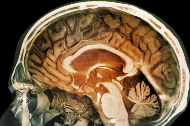 Ученые: запущен проект порегенерации мертвого мозга