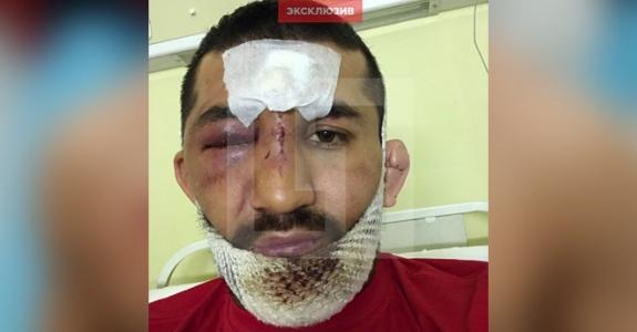 Солдата Мирзаева пытались задушить цепью