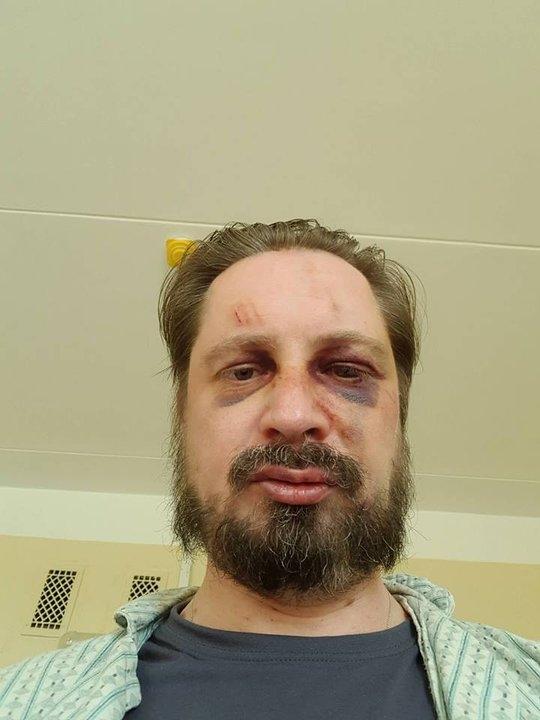 По делу о нападении на Сергея Чалого задержано пять человек
